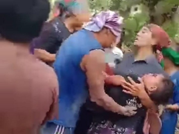 Blar! Tas Isi Bondet Meledak, Empat Anak di Pasuruan Terluka